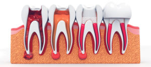 root canal treatment guildford