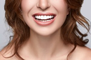 teeth whitening guildford